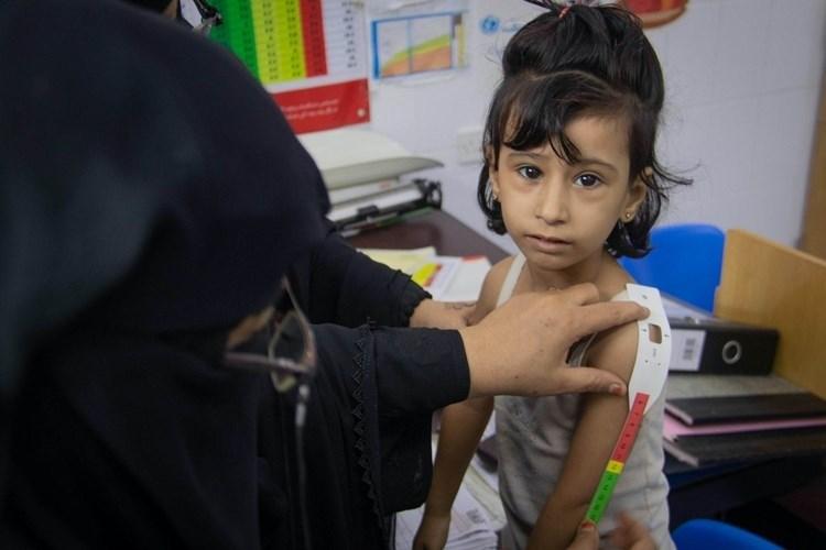 Millones en Yemen sufren inseguridad alimentaria.