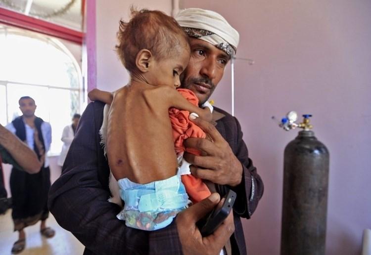 El Fondo de las Naciones Unidas para la Infancia (UNICEF) estimó un aumento en el número de niños que sufrirán desnutrición aguda en 2021 en Yemen.